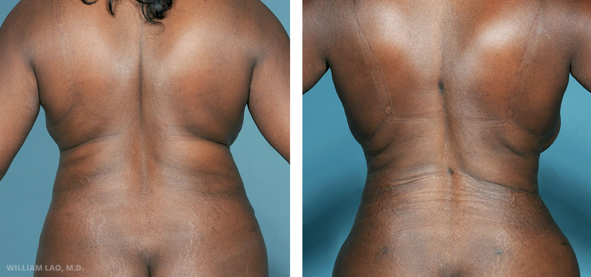Liposuction before and after results as performed by New York City plastic surgeon Dr. William Lao