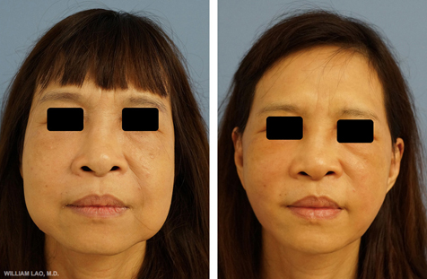 Before and After results of a patient who received facelift by New York plastic surgeon Doctor William Lao