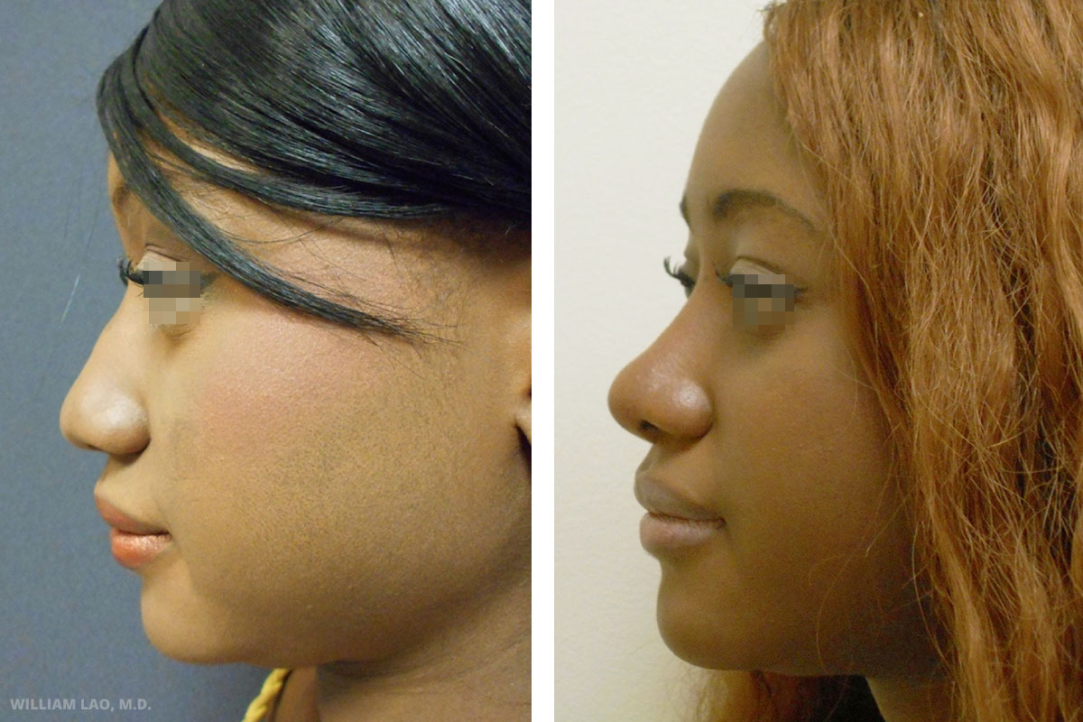 Before and After results of a rhinoplasty performed by Manhattan plastic surgeon Doctor William Lao