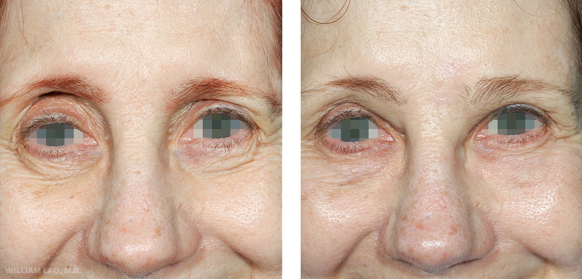 Before and After results of a brow lift performed by New York surgeon Doctor William Lao